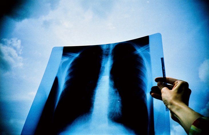 Study: Double-drug strategy blocks escape route for most lung cancers