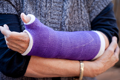 Casting call: Why immobilizing helps in healing