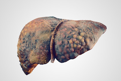 Liver cancer screening rates must improve