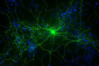 Geneticists ID molecular pathway for autism-related disorder