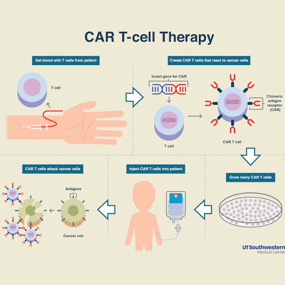 New CAR T-cell therapy extends remission in heavily relapsed multiple myeloma patients