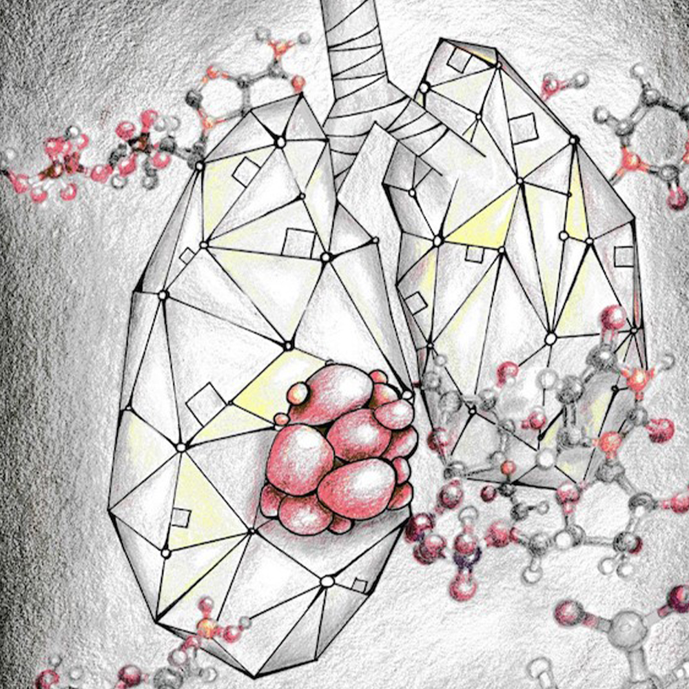 Researchers uncover a potential treatment for an aggressive form of lung cancer