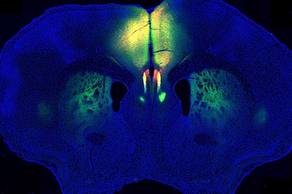 O'Donnell Brain Institute helps U.S. effort to research learning, memory