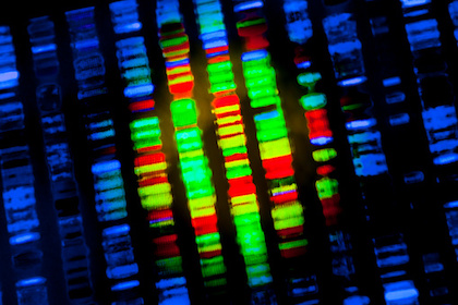 Three reasons why prostate cancer genomic testing is flawed