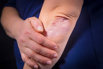 UTSW investigation provides insight into potential new strategy to target skin diseases like psoriasis