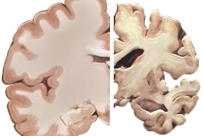 Study: Brain injury may boost risk of Alzheimer's earlier in life