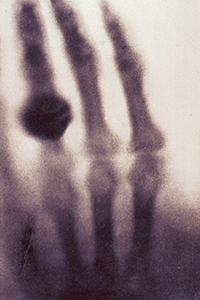 Blurry X-ray image of hand