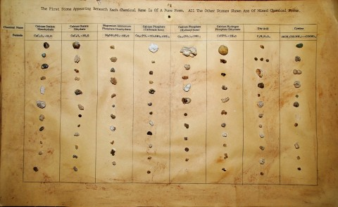 Large chart showing a variety of kidney stones
