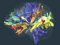 Recent advancements in neuroimaging now make it possible for researchers to map and understand how information between different areas of the brain is relayed.