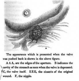 "An engraving from Beaumont's 1833 book ""Experiments and Observations on the Gastric Juice and the Physiology of Digestion,"" depicting St. Martin's wound in his left upper abdomen."