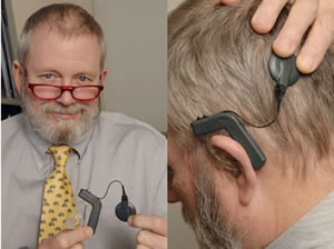Dr. Peter Roland, chairman of otolaryngology-head and neck surgery, is leading the local clinical trial of a new hybrid hearing aid/cochlear implant device designed for patients who can benefit from both.