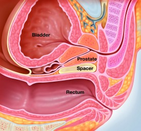 Graphic demonstrates how the spacer gel shifts the rectum away from the prostate gland.