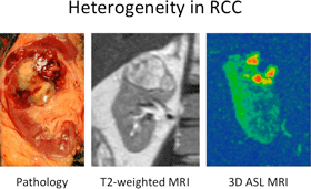 Cut surface of specimen (left), coronal T2-weighted image (middle), and 3D arterial spin labeling (ASL) acquisition demonstrating marked heterogeneity in clear cell renal cell carcinoma. Note the distinct foci of angiogenesis in the tumor (bright red areas on ASL).