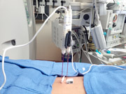 Nanoknife probes introduced percutaneously into the kidney to ablate a renal mass.