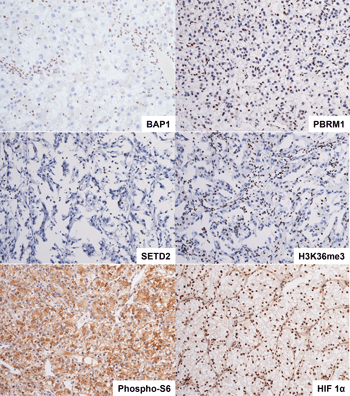 Representative images of the renal cell carcinoma immunohistochemistry panel used by pathologists at UT Southwestern Medical Center.