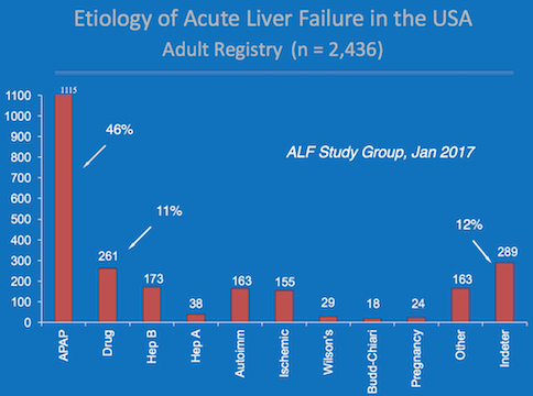 Causes of acute liver failure graph