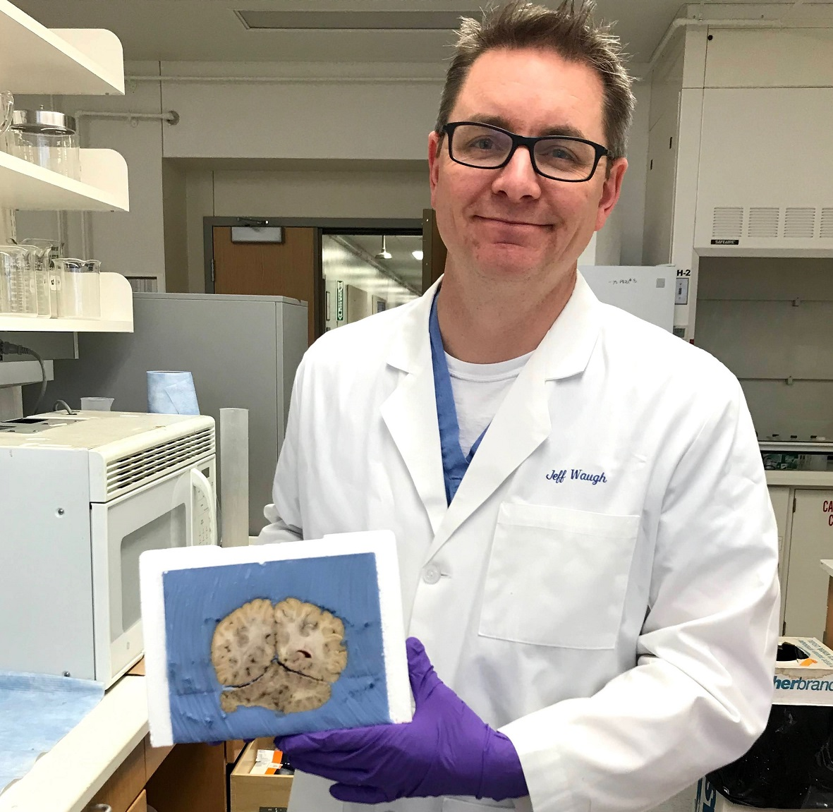 Dr. Waugh holding a brain