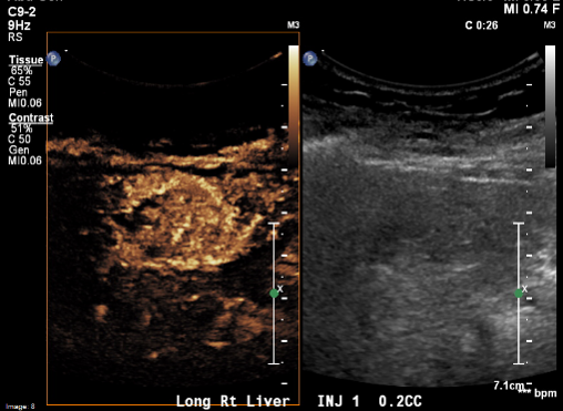 Enhancing the Role of Ultrasound with Contrast Agents