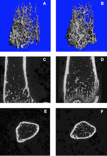 Imaging of bone mass and metabolism by mCT and mPET