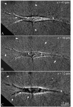 Figure 1: Three DIC images from a five-image z-series of an untransfected corneal fibroblast plated inside 3-D collagen matrix. The z position shown is relative to the bottom of the collagen matrix. Individual collagen fibrils are easily discerned adjacent to the cell (arrows), and also crossing above (C, arrowheads) and below (A, arrowheads) the cell body. A different population of collagen fibrils is observed in each image.