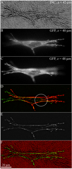 Figure 2: Image processing and display of 3-D datasets. DIC (A), GFP (B-E), and combined (F) images of a corneal fibroblast expressing GFP-zyxin are shown. A: A single DIC image showing the fibrillar collagen organization surrounding the cell. B, C: The top and bottom GFP images from a 5-image z-series. GFP-zyxin was organized into adhesions that were most concentrated along pseudopodia at the ends of the cell. D: Color-coded reconstruction produced by performing a flatten background operation on each image in the z-series, then overlaying the bottom three images in red and the top two images in green. Adhesions are visualized on both the ventral (red) and dorsal (green) surface of the cell body in some regions (circle). E: 3-D reconstruction produced using a maximum intensity projection. F: Color overlay of E (green) and A (red) allows focal adhesion and collagen organization to be directly compared.