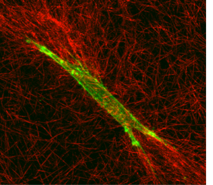 Figure 4: Color overlay of f-actin (green) and collagen fibils (red) allows interaction between cells and the extracellular matrix to be directly visualized. Increased compaction and alignment of collagen fibrils parallel to the pseudopodial tips is generally observed at the ends of corneal fibroblasts. Collagen was visualized using reflected light confocal imaging and f-actin was visualized using fluorescent labeling (Alexaflour phallodin 488).
