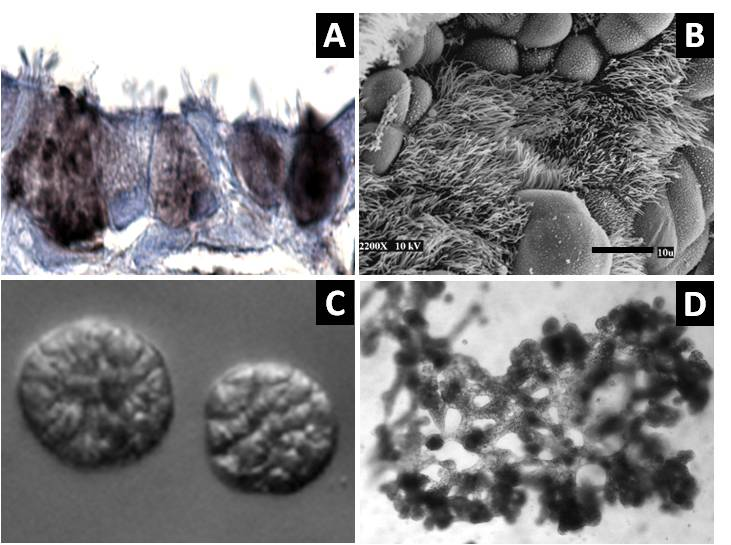 Figure 1. Differentiation of HBEC3KTs in different extracellular conditions. (A) Paraffin cross-section of well differentiated air-liquid interface (ALI) culture with immuno-histochemistry stain for MUC5AC+ goblet cells interspersed between ciliated cells. (B) Scanning electron micrograph also shows well differentiated goblet and ciliated cells at ALI. Scale = 10 µm (C) Phase contrast picture of 5 day bronchial organoids 50 µm in diameter embedded in Matrigel® with a fibroblast feeder layer. (D) Phase contrast picture of 10 day highly branched organotypic structure on top of Matrigel® with a fibroblast feeder layer below.