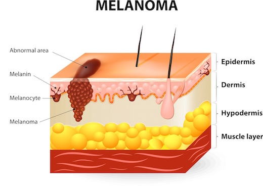 melanoma graphic