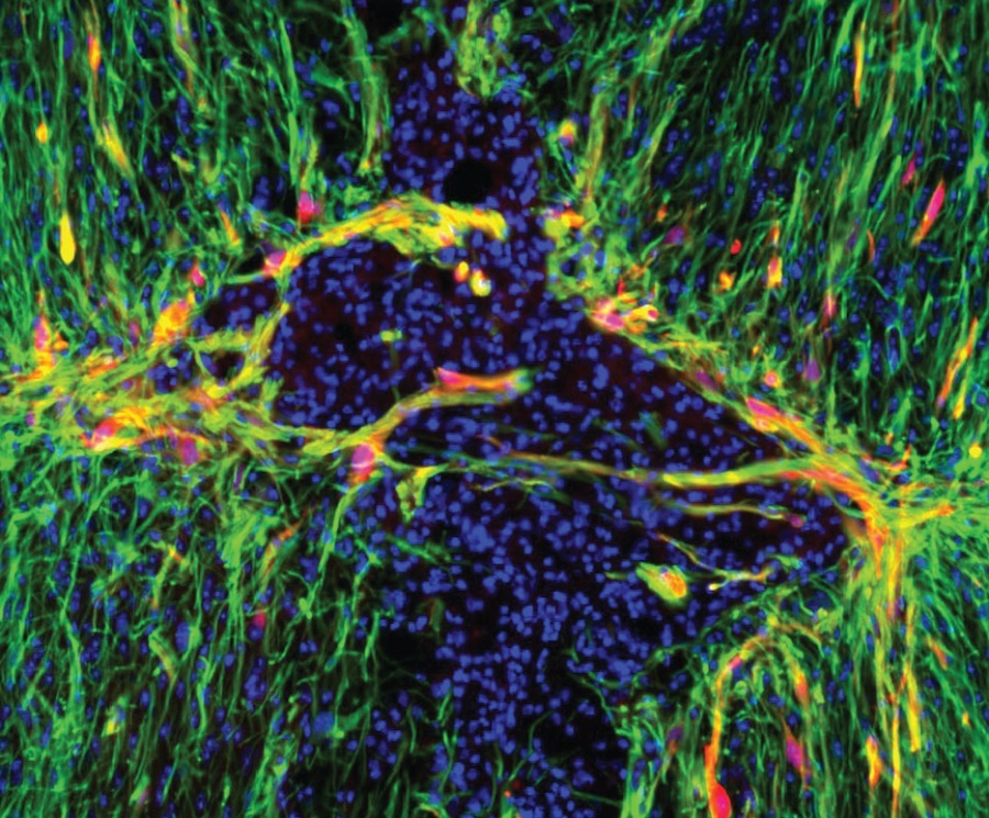 Targeting Brains Star Shaped Cells May >> Gene Therapy May Help Brain Heal From Stroke Other Injuries