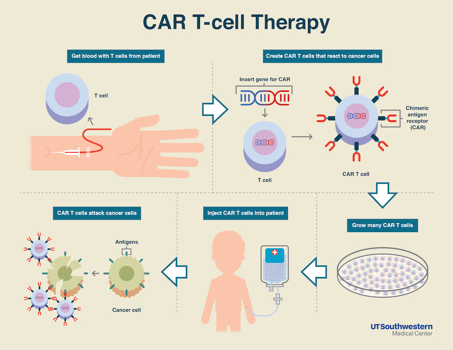 How CAR-T therapy works