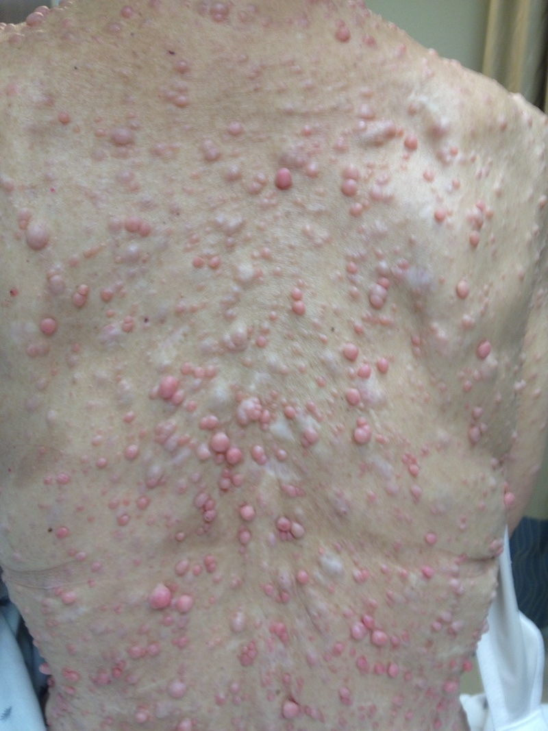 Cutaneous neurofibromas cover the back of a patient.