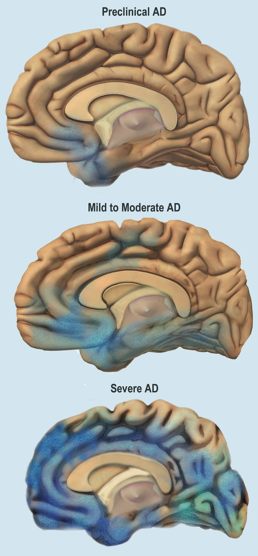 Various stages of brain deterioration due to Alzheimer's