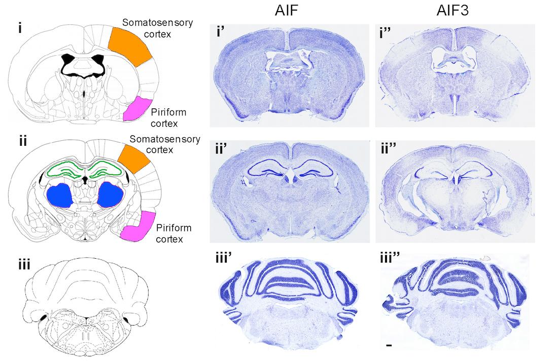 Lo splicing AIF3 innesca la neurodegenerazione e la perdita di neuroni nel cervello di un topo, mostrato nella corteccia (arancione e rosa), nell'ippocampo (verde) e nel talamo (blu).