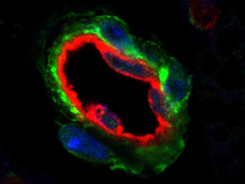 An image showing a blood vessel in fat tissue, surrounded by fat progenitor cells (in green).