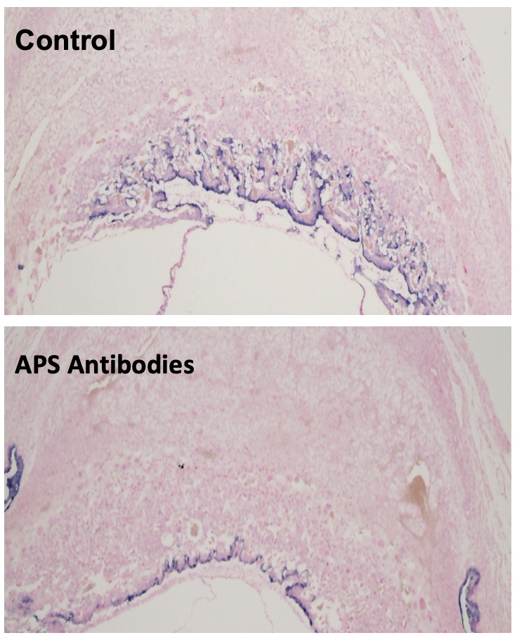The images show how APS antibodies inhibit the migration of trophoblasts in the placenta of mice.